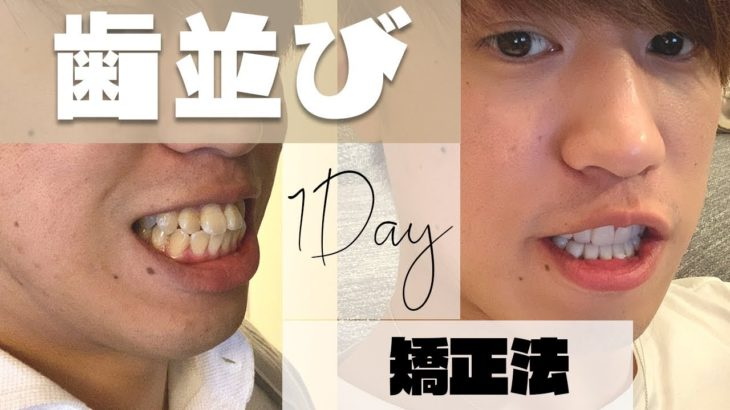 【感動】たった1日で歯並びを変わった「ある方法」